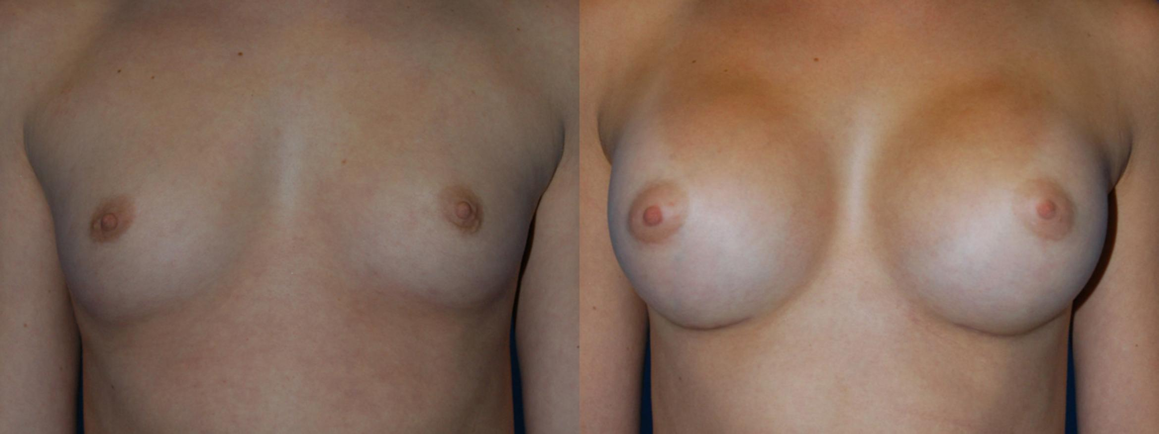 Breast Augmentation Case 13 Before & After View #1 | Vancouver, BC | Dr. Peter Lennox