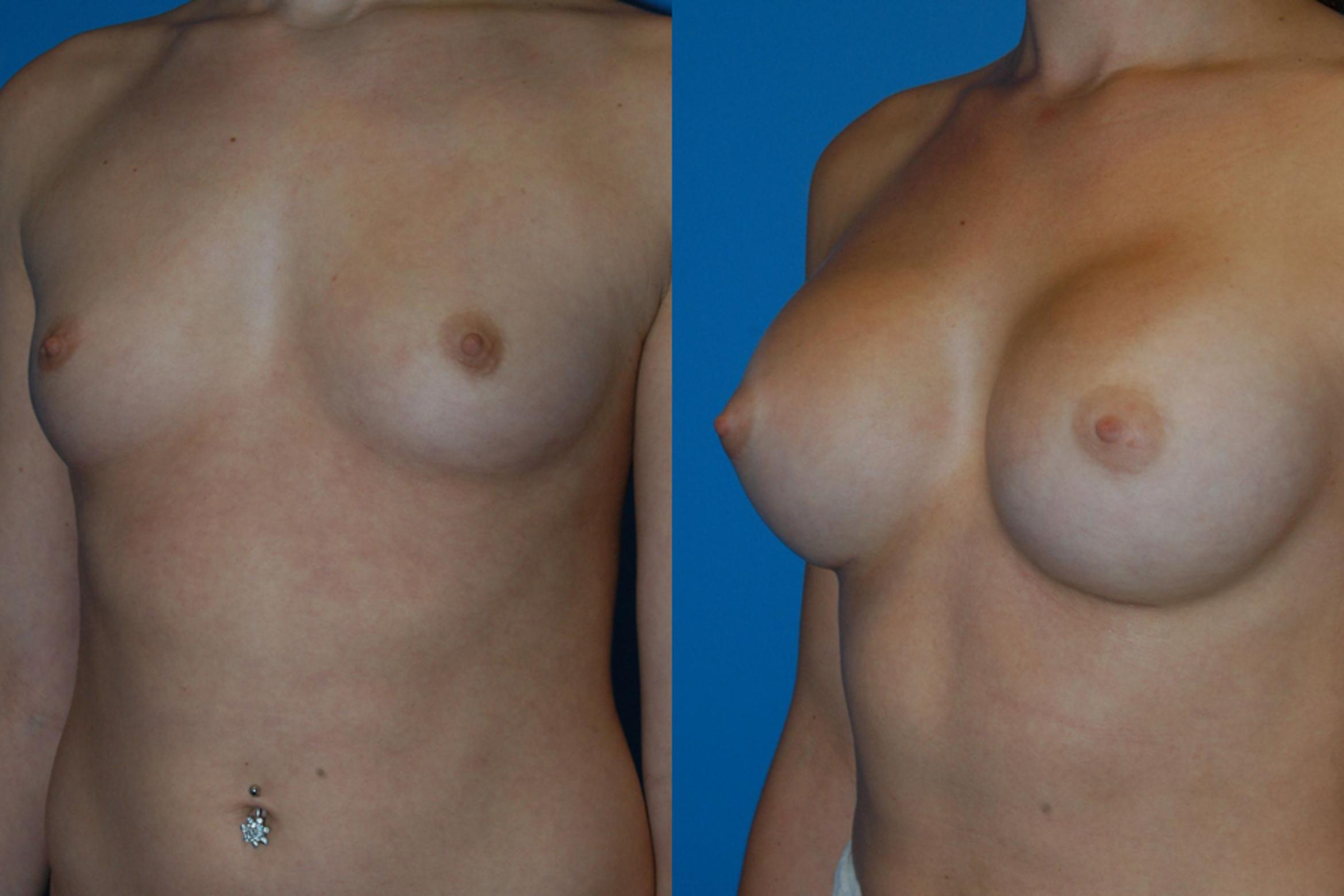 Breast Augmentation Case 13 Before & After View #2 | Vancouver, BC | Dr. Peter Lennox