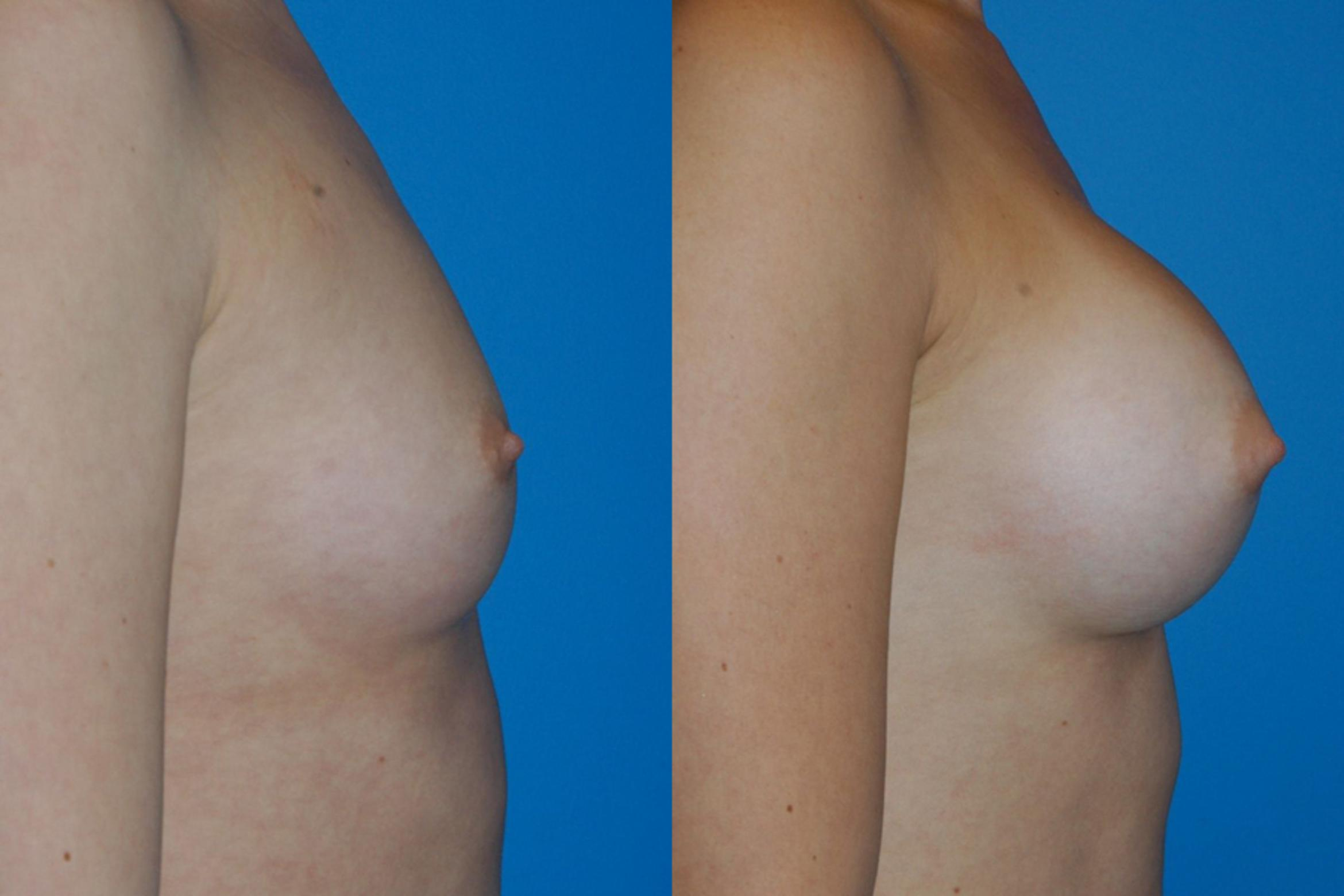 Breast Augmentation Case 13 Before & After View #3 | Vancouver, BC | Dr. Peter Lennox