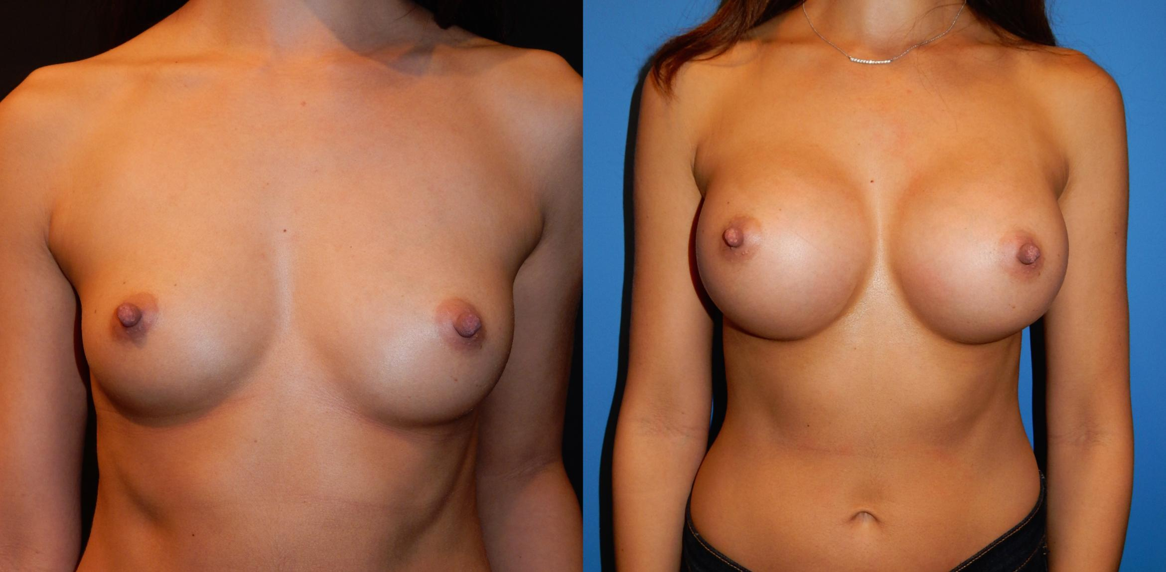 Breast Augmentation Case 34 Before & After View #1 | Vancouver, BC | Dr. Peter Lennox