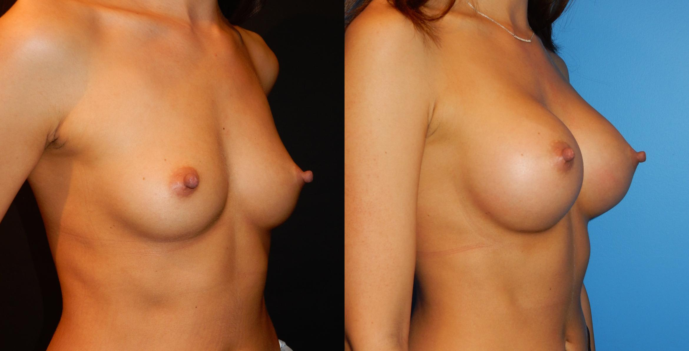 Breast Augmentation Case 34 Before & After View #2 | Vancouver, BC | Dr. Peter Lennox