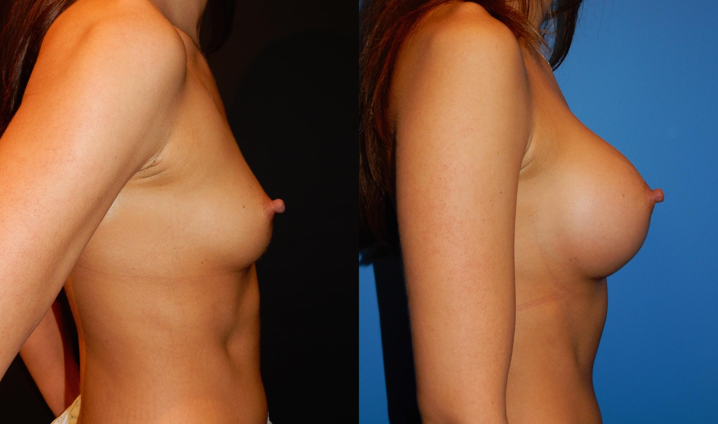 Breast Augmentation Case 34 Before & After View #3 | Vancouver, BC | Dr. Peter Lennox