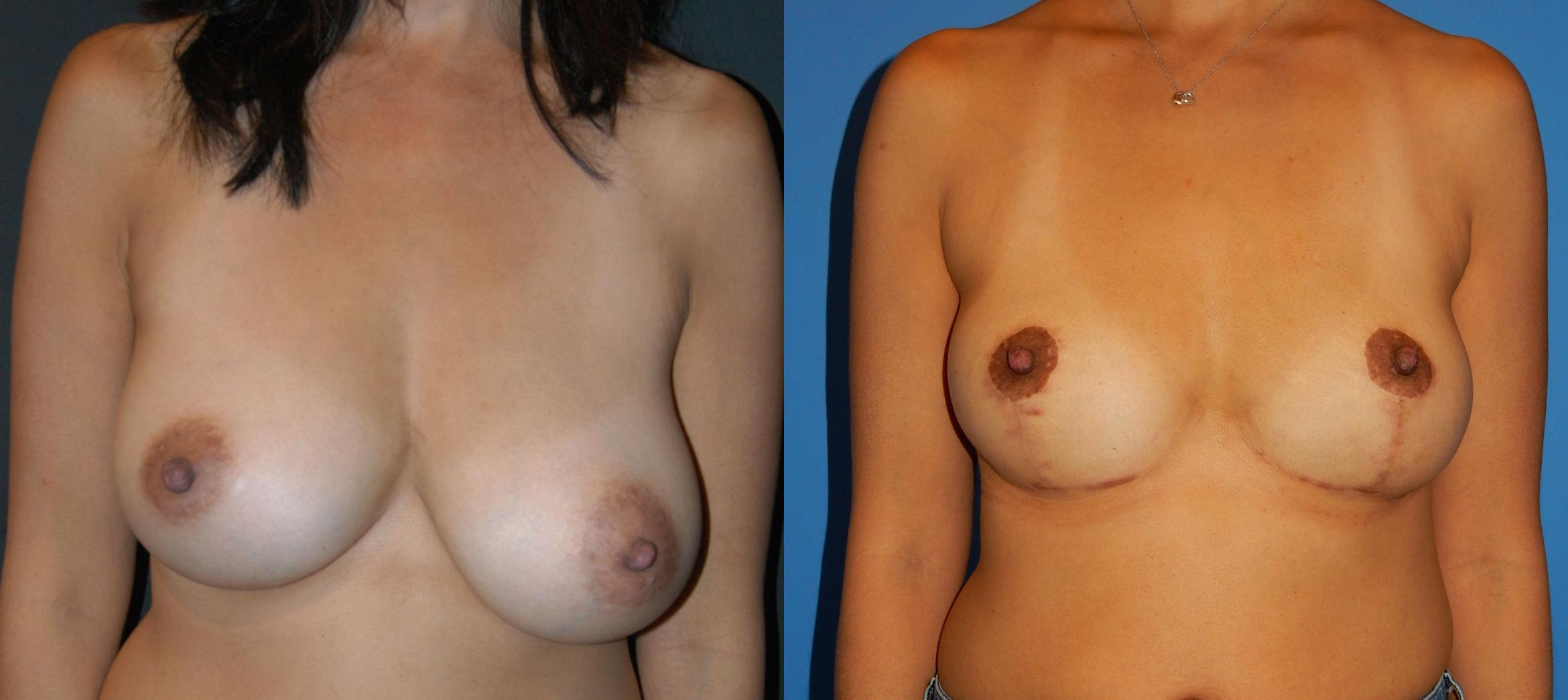 Breast Lift Case 29 Before & After View #1 | Vancouver, BC | Dr. Peter Lennox
