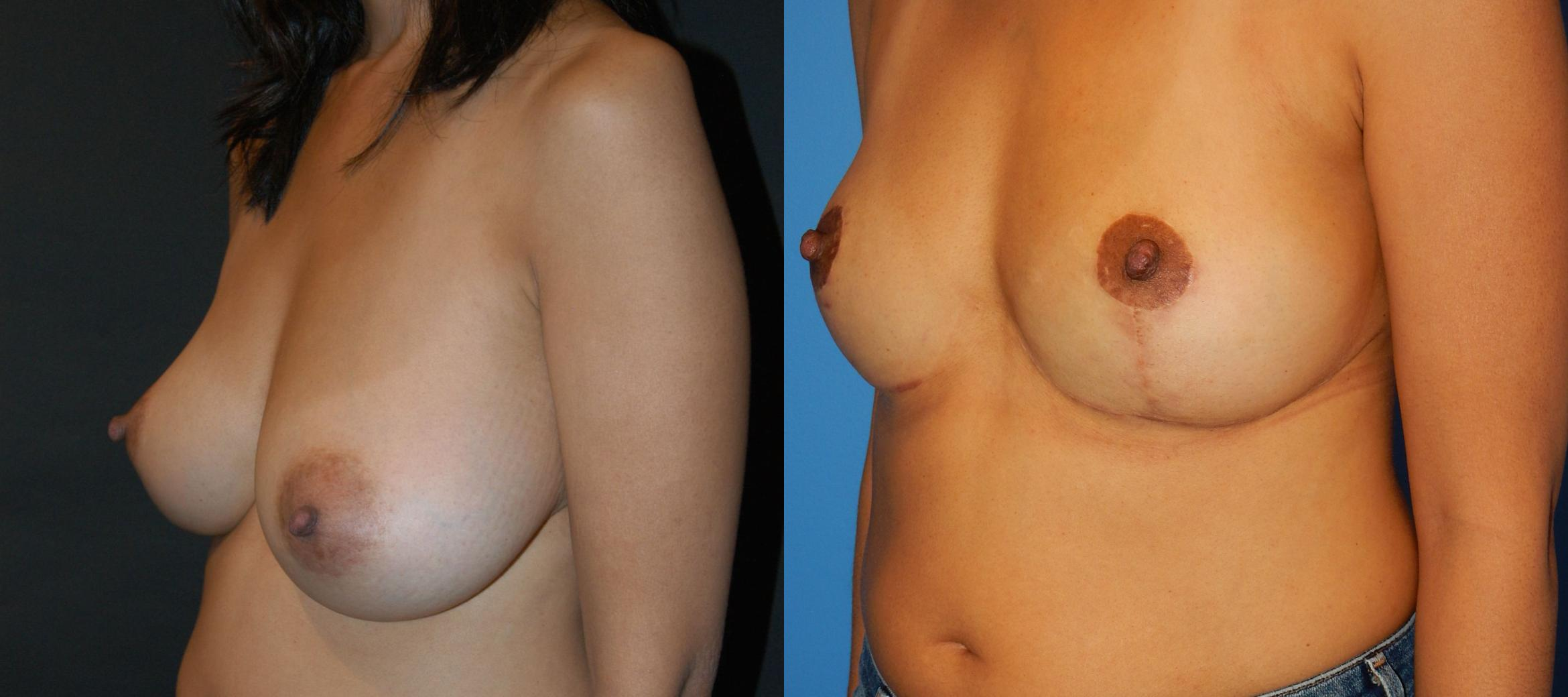 Breast Lift Case 29 Before & After View #3 | Vancouver, BC | Dr. Peter Lennox