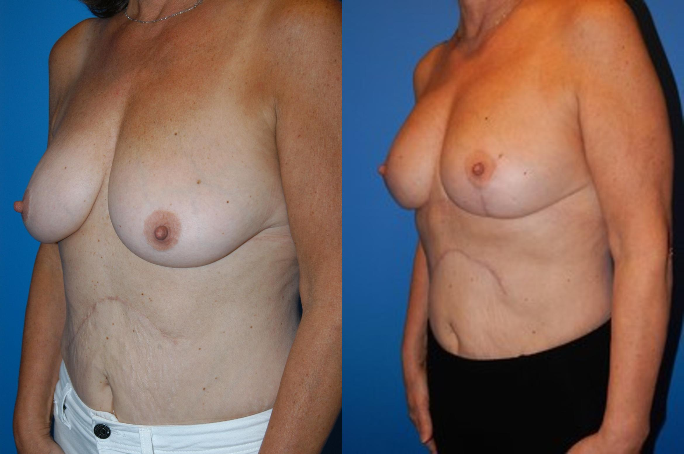 Breast Lift Case 31 Before & After View #1 | Vancouver, BC | Dr. Peter Lennox