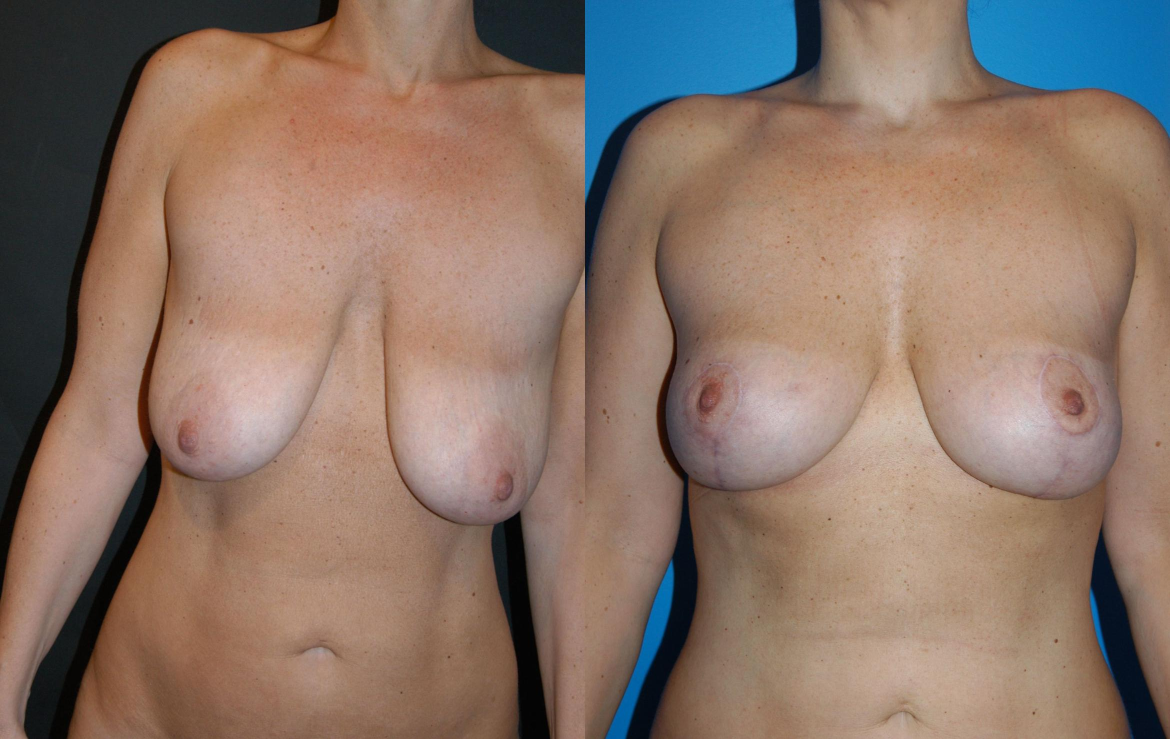 Breast Lift Case 33 Before & After View #1 | Vancouver, BC | Dr. Peter Lennox