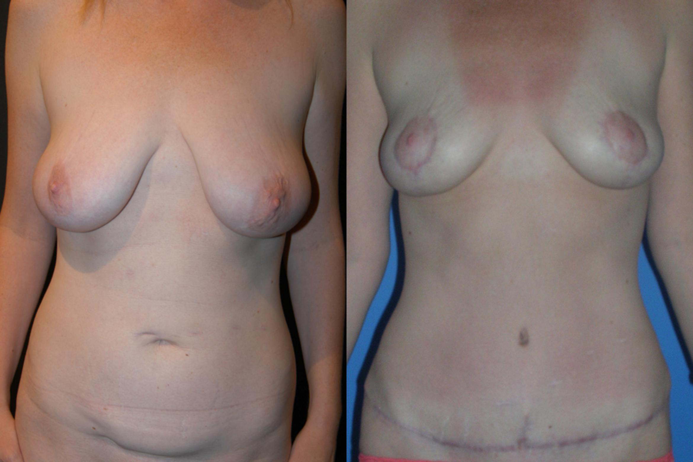 Breast Lift Case 7 Before & After View #1 | Vancouver, BC | Dr. Peter Lennox